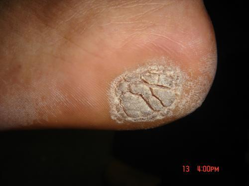 生殖器疣的原因_蔡维立在治疣方面很有研究-武汉市皮肤病蔡维立主任-搜狐博客